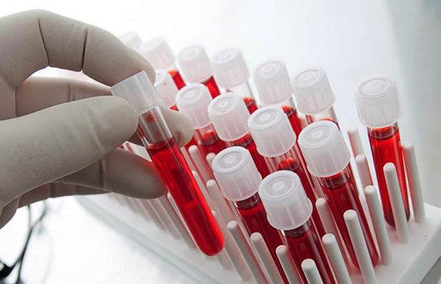 Уровень потенции зависит от группы крови