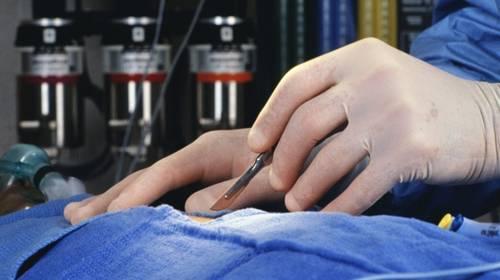 Хирургическое лечение преждевременного семяизвержения