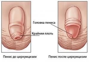 Нужно ли делать обрезание мужчине?