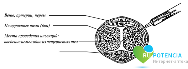 Каверджект: структура укола